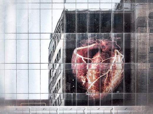 Heart2-XL